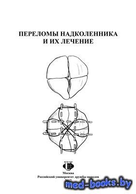 Переломы надколенника и их лечение - Загородний Н.В., Хиджазин В.Х. и др. - ...