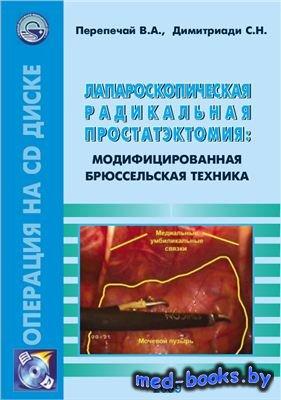 Лапароскопическая радикальная простатэктомия: модифицированная Брюссельская техника - Практическое пособие - Перепечай В.А. - 2009 год