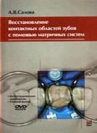 Восстановление контактных областей зубов с помощью матричных систем - Салова А.В. - 2003 год