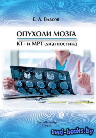Опухоли мозга. КТ- и МРТ-диагностика - Е. А. Власов - 2018 год